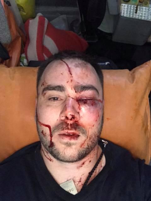 У Запоріжжі прострелили ногу активісту за зауваження не кидати петарди