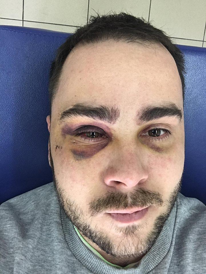 В активіста, якого підстрелили за кілька годин до Нового року, справи гірше, ніж очікували – фото
