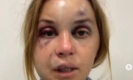 Побита голова та зламана щелепа, у поїзді на жінку з дитиною, яка їхала із Запоріжжя напали