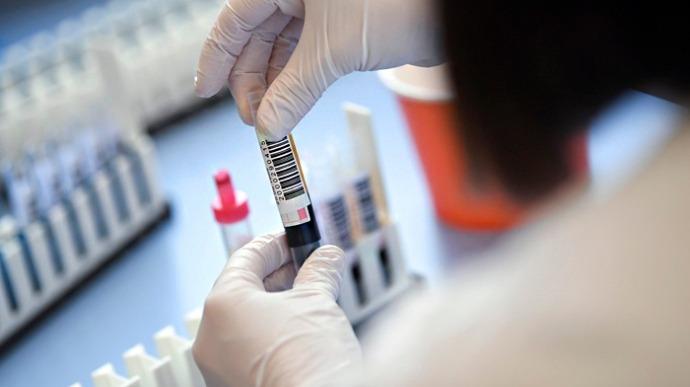 Кількість нових хворих на COVID-19 показує черговий антирекорд