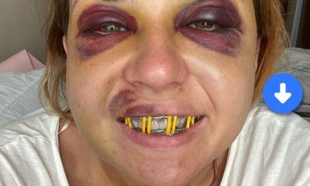 Жінка, яку побили в потязі написала про погіршення стану здоров'я