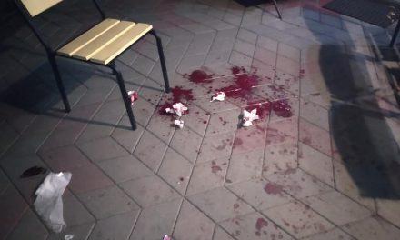 У кафе на Запоріжжі хлопець завдав важких ножових поранень відвідувачам закладу, які відмовилися його пригощати – фото